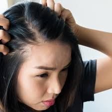 Image result for hair loss